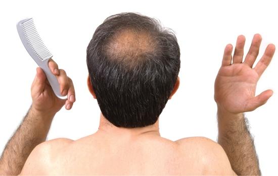 Выпадение волос у мужчин — вот как это можно остановить