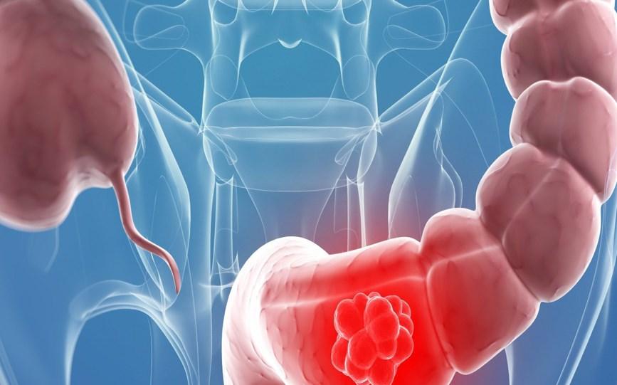 Рак толстой кишки — симптомы, лечение, скрининг рака толстой кишки