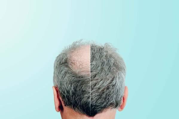 Kreisrunder Haarausfall bei Männern